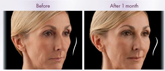 Juvederm Voluma - Before and After