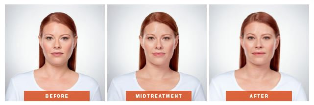 Front Facing Photos of Kybella Effects