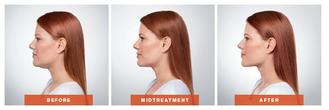 Profile Progression of Kybella Treatment